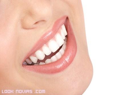 Tratamientos dentales para novias